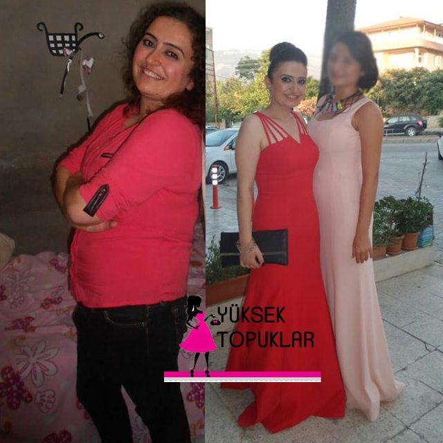 22 kilo veren Cemile Hanım'ın mucizevi değişimi